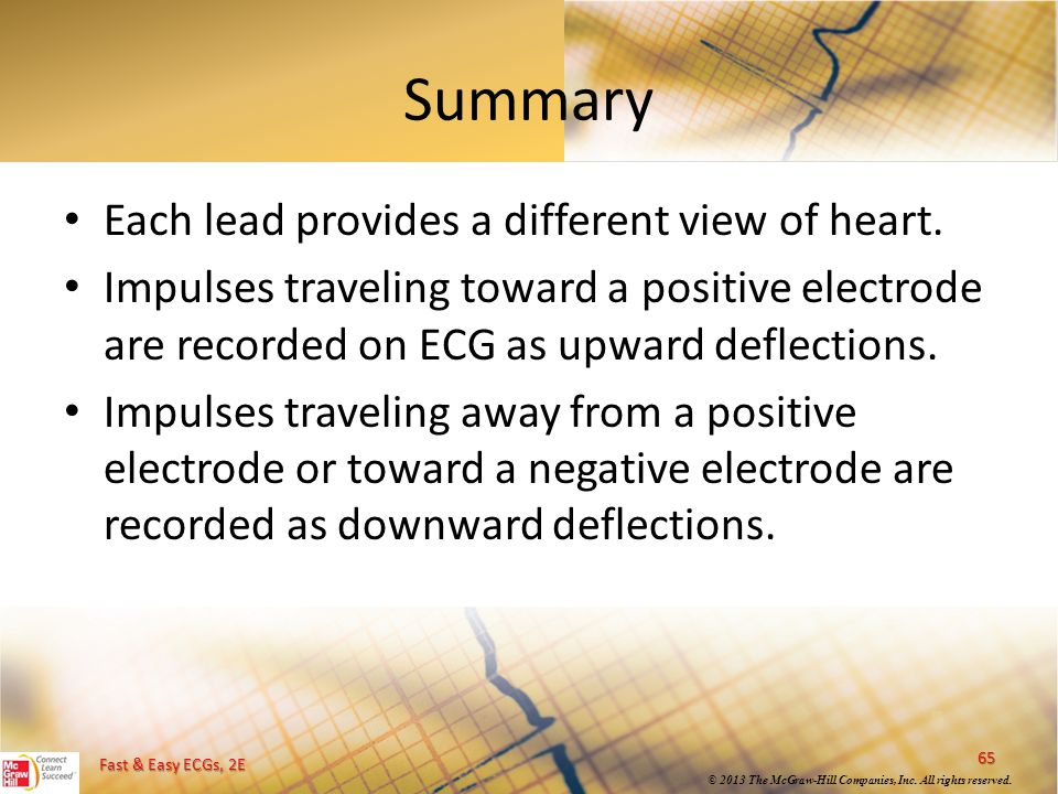 Summary Each lead provides a different view of heart.