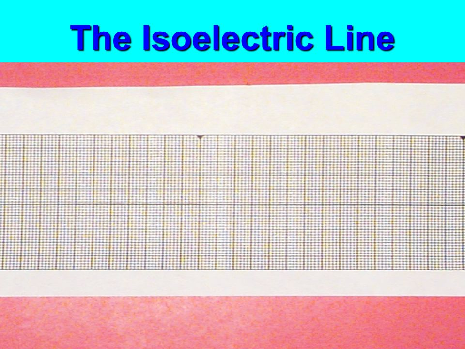The Isoelectric Line