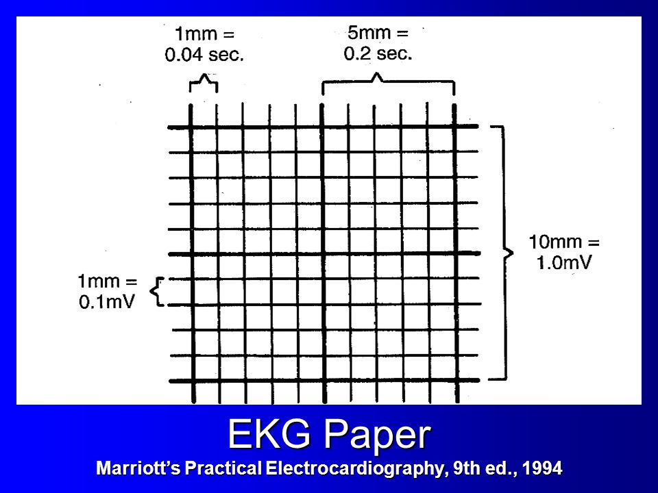 EKG Paper Marriott's Practical Electrocardiography, 9th ed., 1994