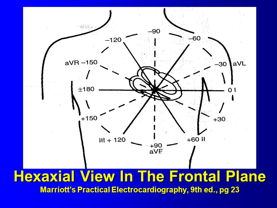 Hexaxial View In The Frontal Plane Marriott's Practical Electrocardiography, 9th ed., pg 23