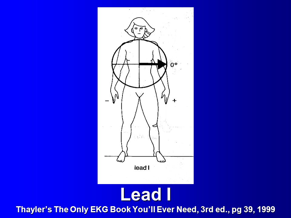 Lead I Thayler's The Only EKG Book You'll Ever Need, 3rd ed