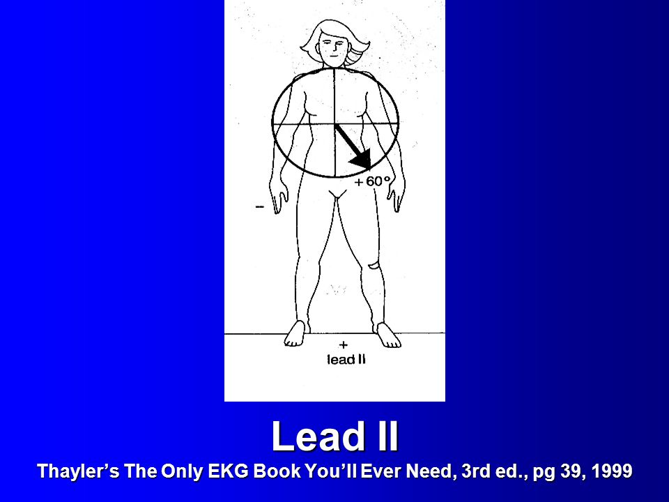 Lead II Thayler's The Only EKG Book You'll Ever Need, 3rd ed