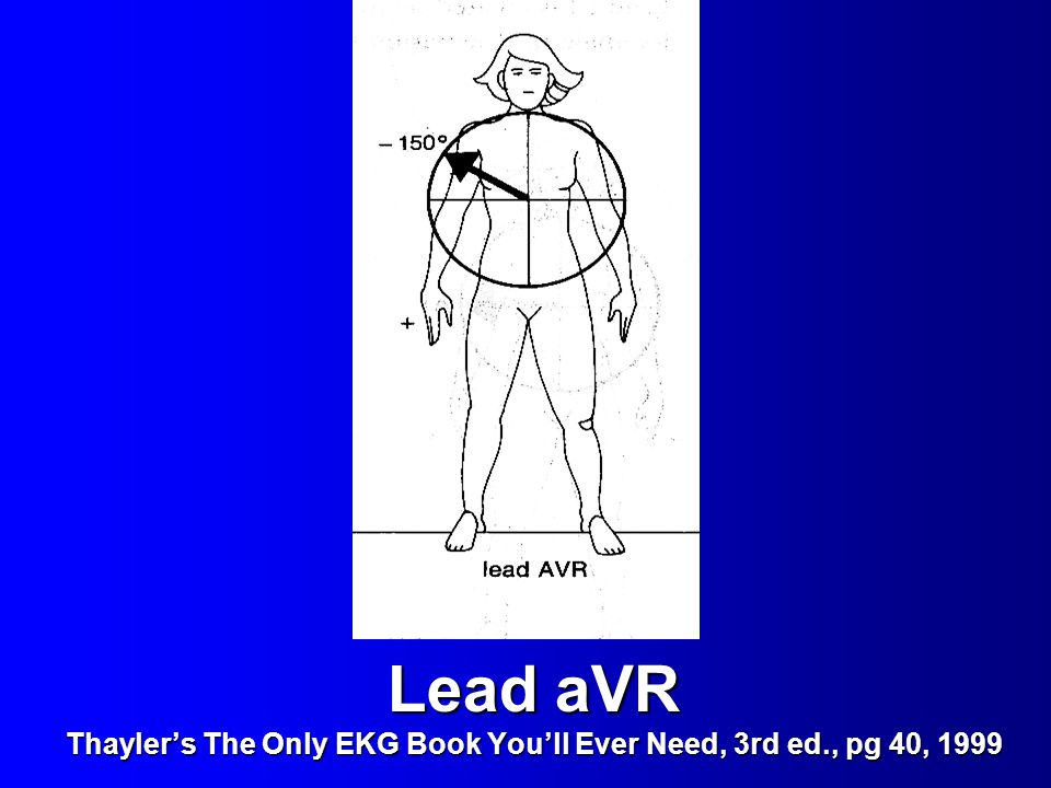 Lead aVR Thayler's The Only EKG Book You'll Ever Need, 3rd ed