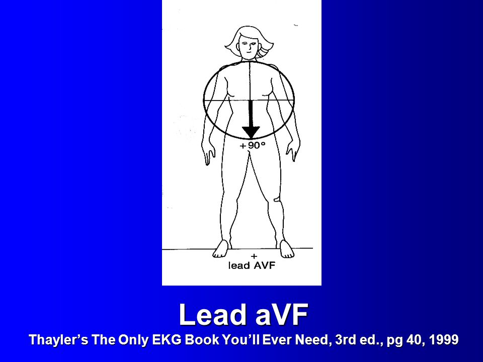 Lead aVF Thayler's The Only EKG Book You'll Ever Need, 3rd ed
