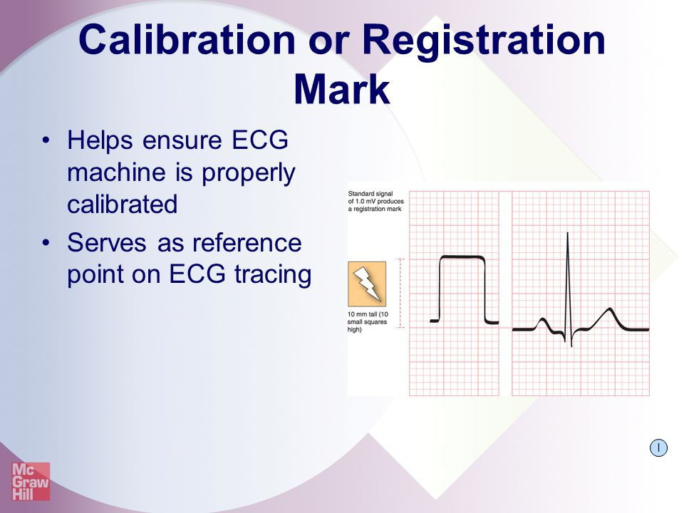 Calibration or Registration Mark