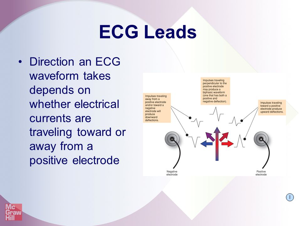 ECG Leads Direction an ECG waveform takes depends on whether electrical currents are traveling toward or away from a positive electrode.