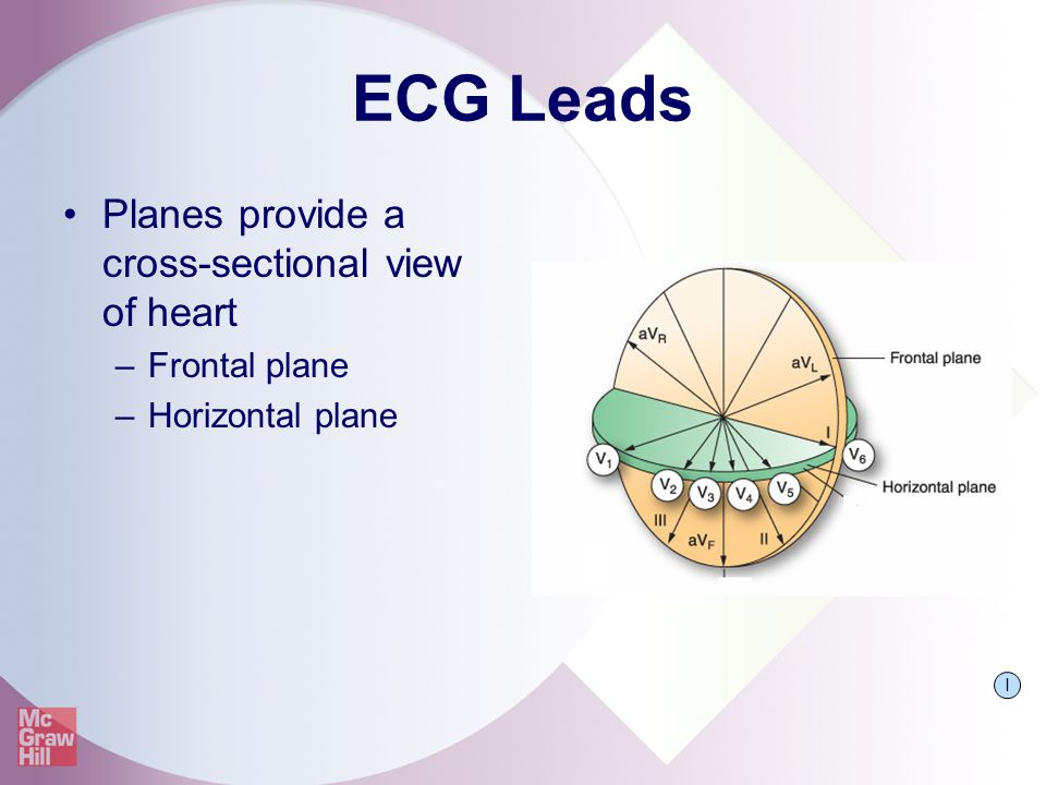 ECG Leads Planes provide a cross-sectional view of heart Frontal plane