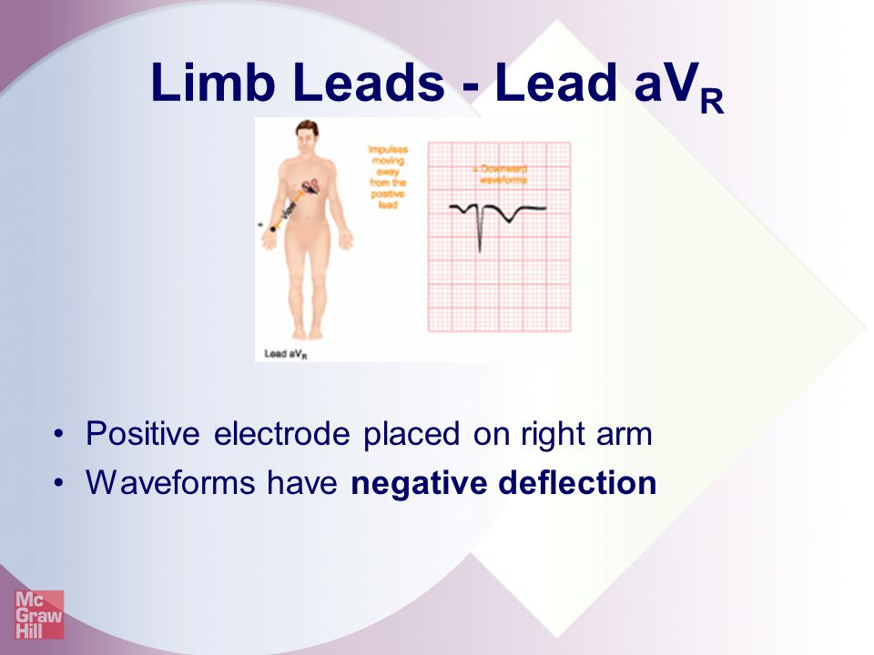 Limb Leads - Lead aVR Positive electrode placed on right arm
