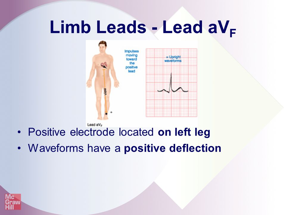 Limb Leads - Lead aVF Positive electrode located on left leg
