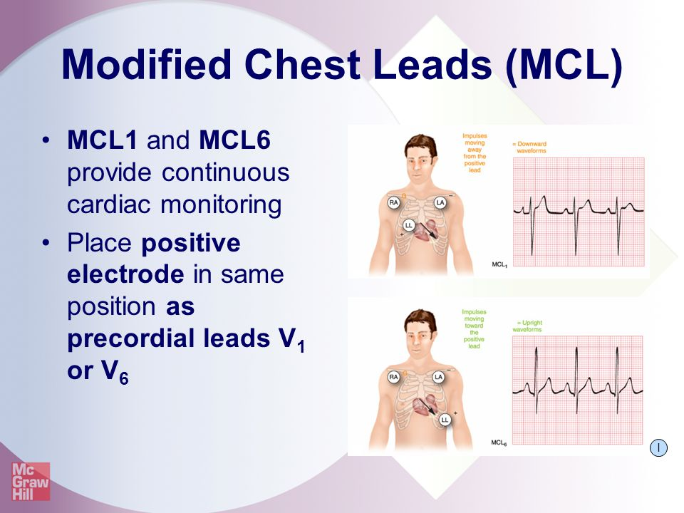 Modified Chest Leads (MCL)