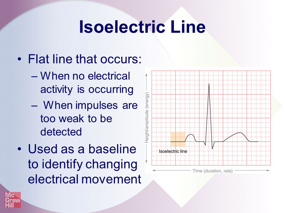 Isoelectric Line Flat line that occurs: