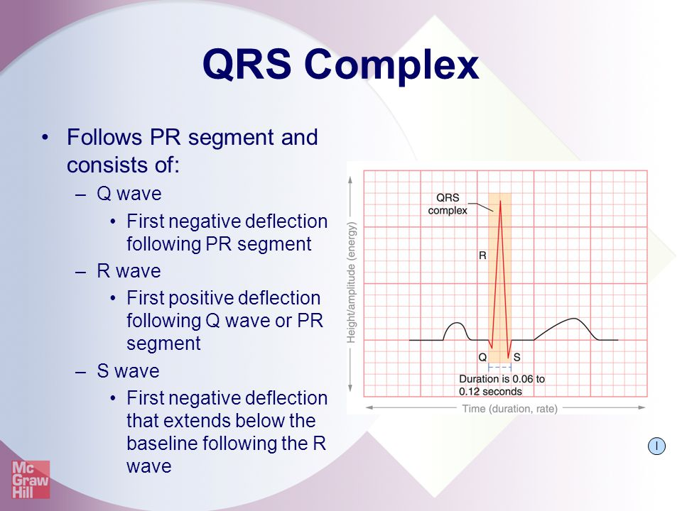 QRS Complex Follows PR segment and consists of: Q wave