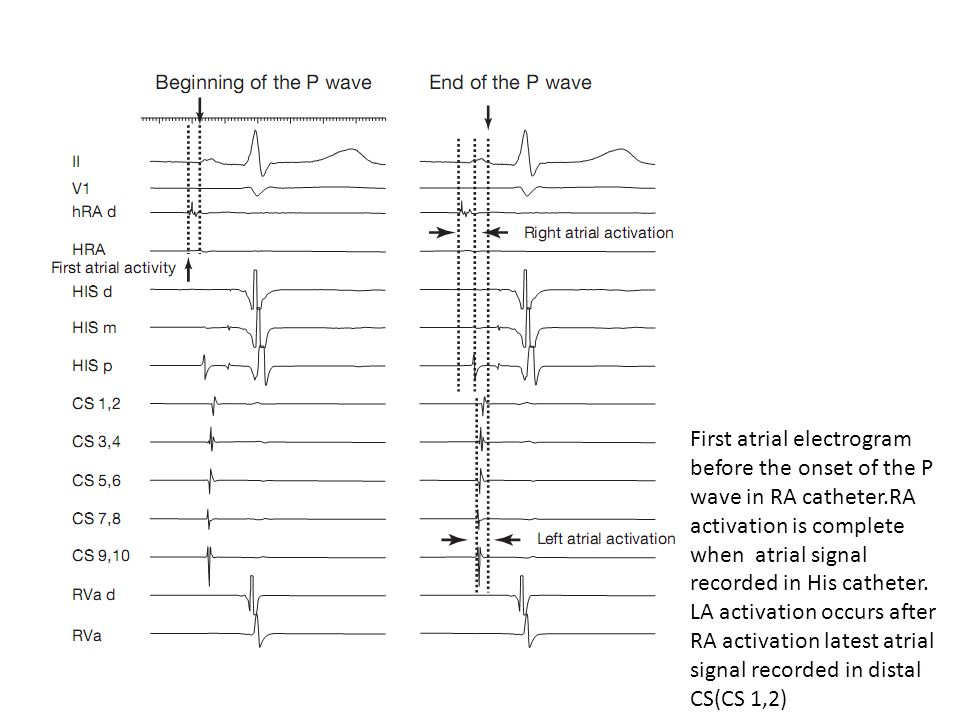 First atrial electrogram before the onset of the P wave in RA catheter