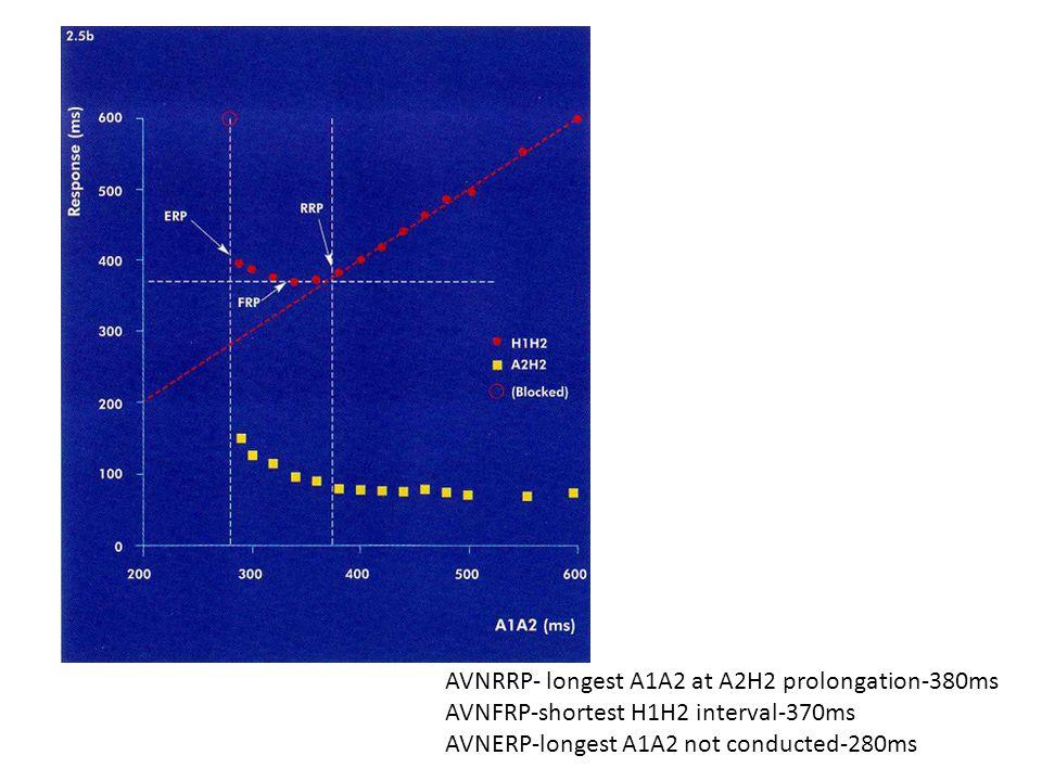 AVNRRP- longest A1A2 at A2H2 prolongation-380ms