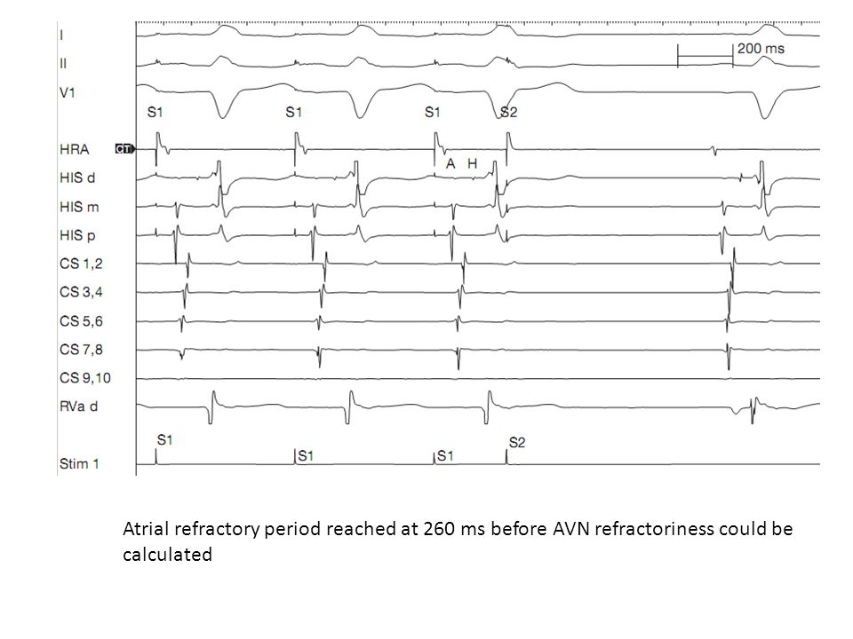 Atrial refractory period reached at 260 ms before AVN refractoriness could be calculated