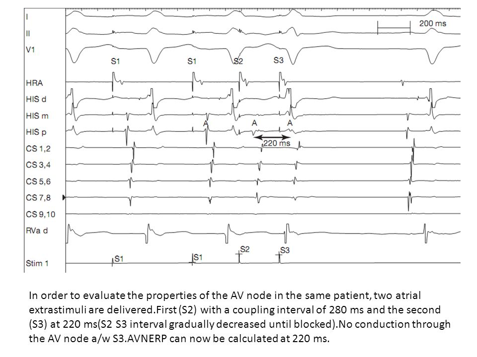 In order to evaluate the properties of the AV node in the same patient, two atrial