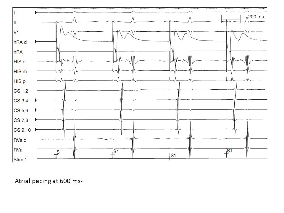 Atrial pacing at 600 ms-
