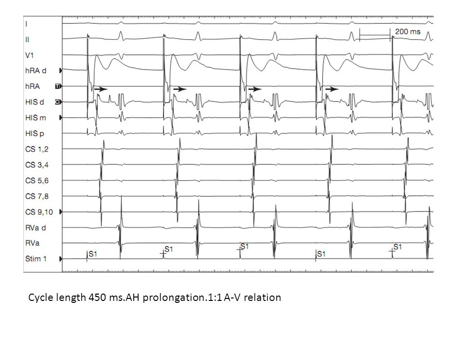 Cycle length 450 ms.AH prolongation.1:1 A-V relation