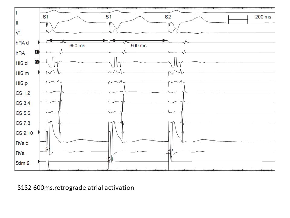 S1S2 600ms.retrograde atrial activation