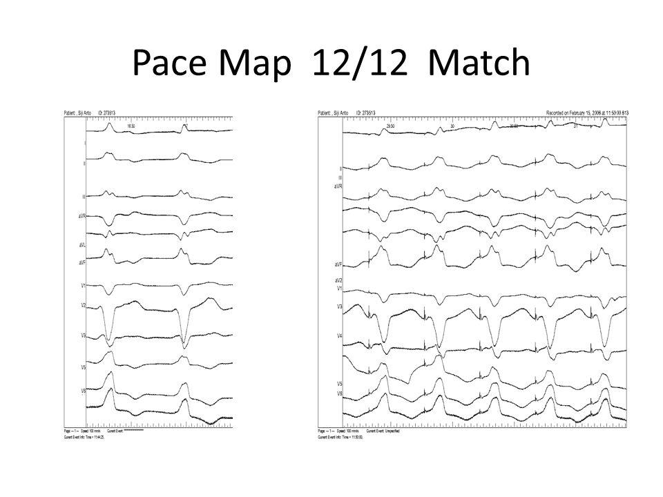 Pace Map 12/12 Match