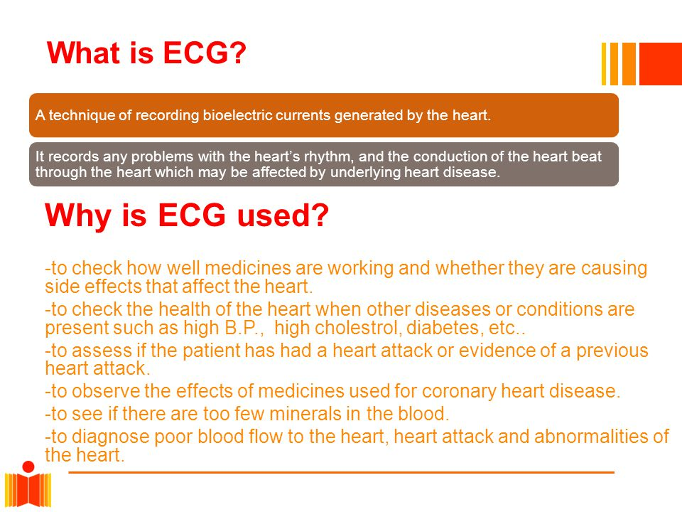 Why is ECG used What is ECG