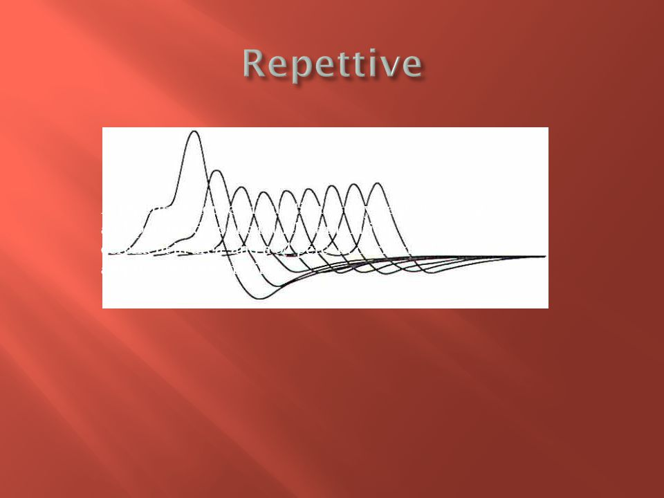 Repettive A repetitive nerve stimulation study demonstrating a 61 percent d to the fourth stimulation.