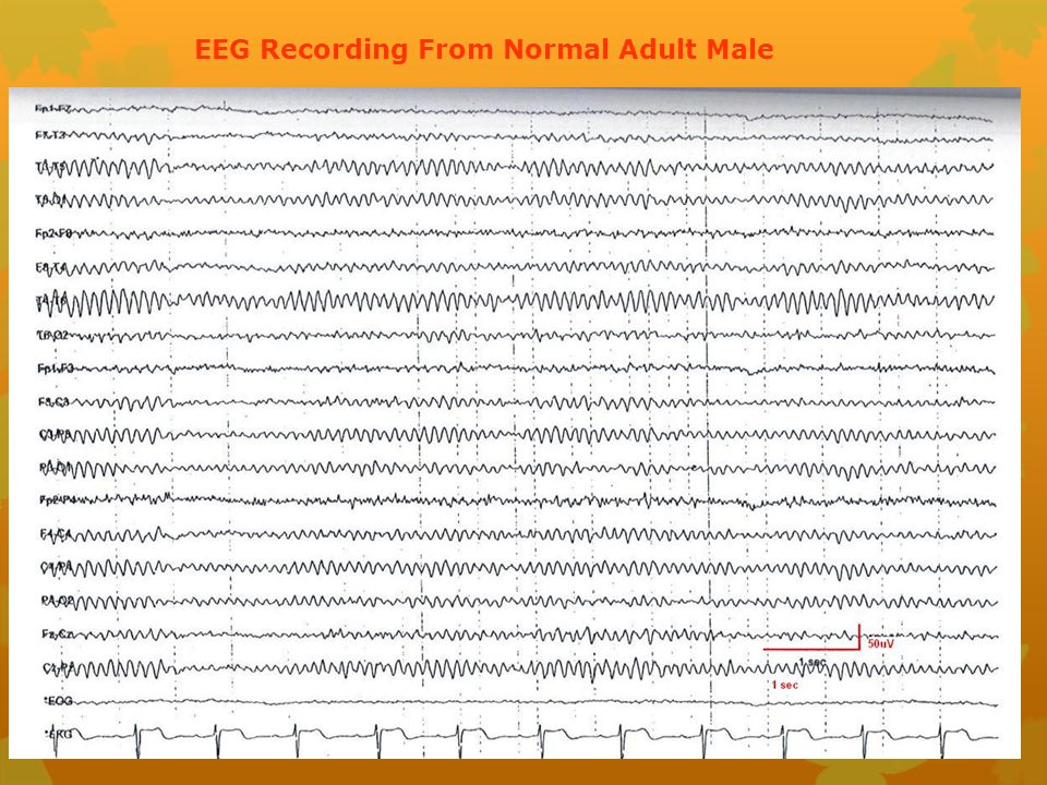 EEG Recording From Normal Adult Male
