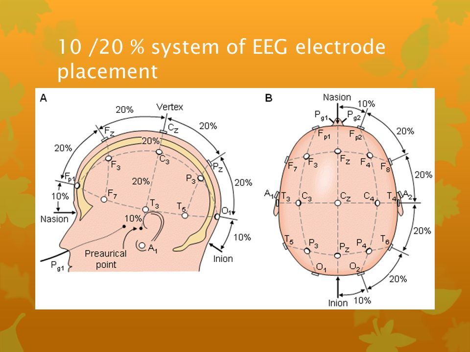 10 /20 % system of EEG electrode placement