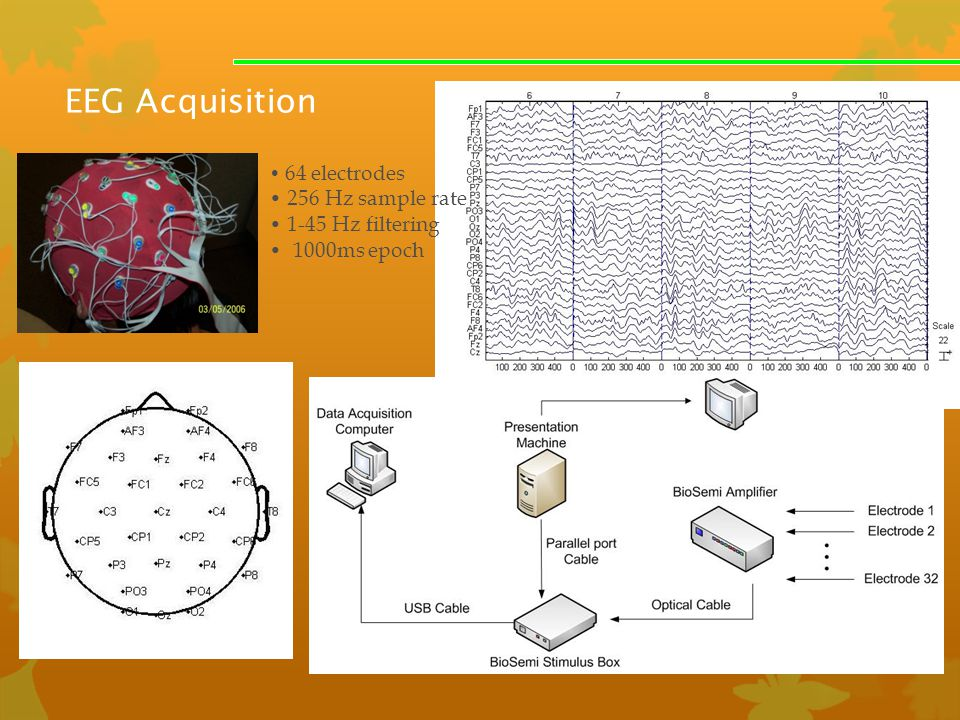 EEG Acquisition 256 Hz sample rate 1-45 Hz filtering 1000ms epoch