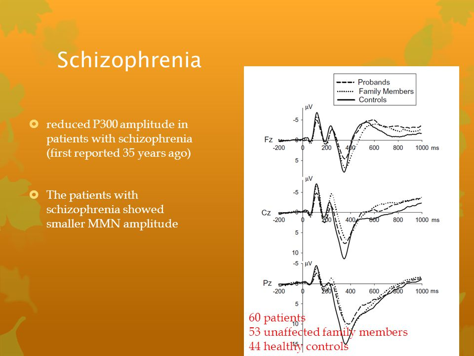 Schizophrenia reduced P300 amplitude in patients with schizophrenia (first reported 35 years ago)