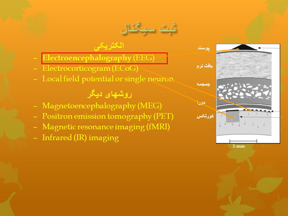 ثبت سیگنال الکتریکی روشهای دیگر Electroencephalography (EEG)