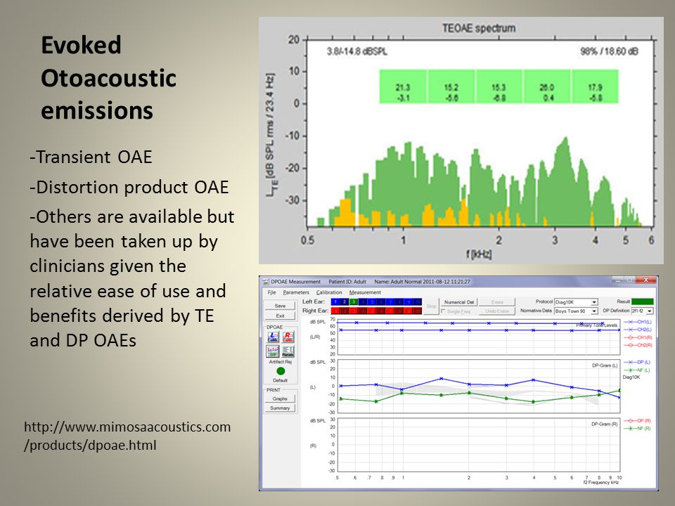 Evoked Otoacoustic emissions