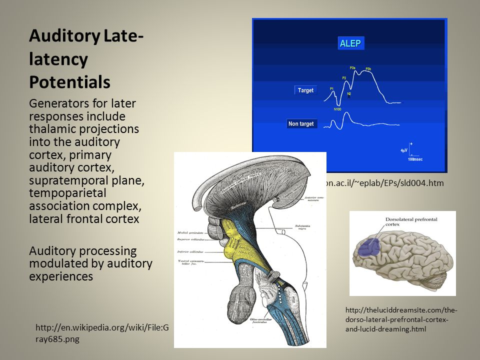 Auditory Late-latency Potentials