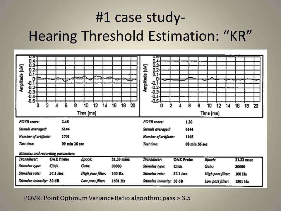 #1 case study- Hearing Threshold Estimation: KR