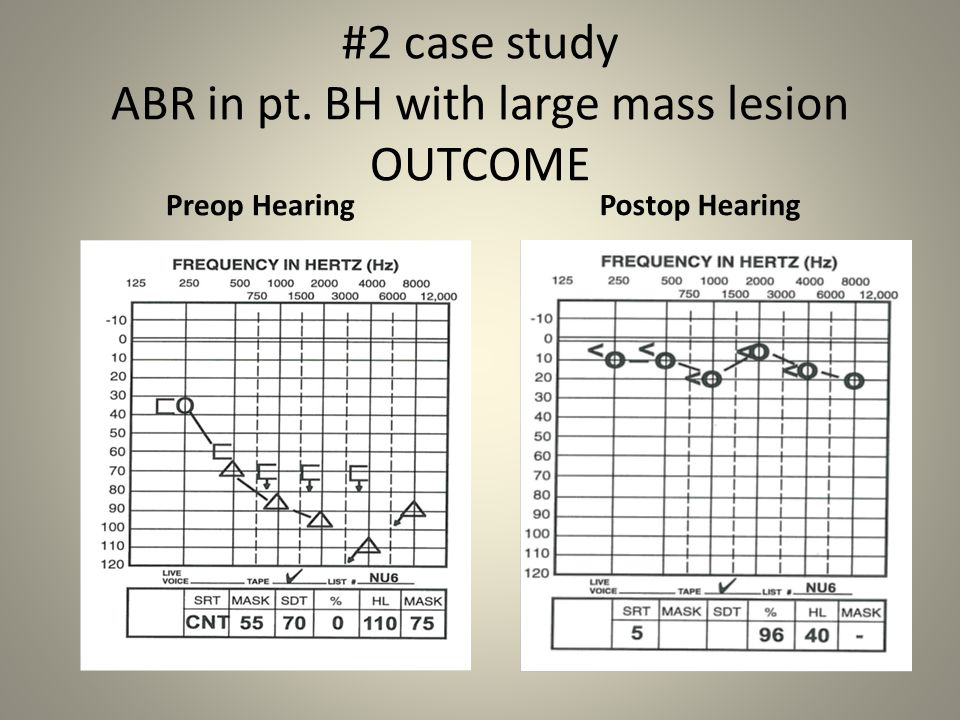 #2 case study ABR in pt. BH with large mass lesion OUTCOME