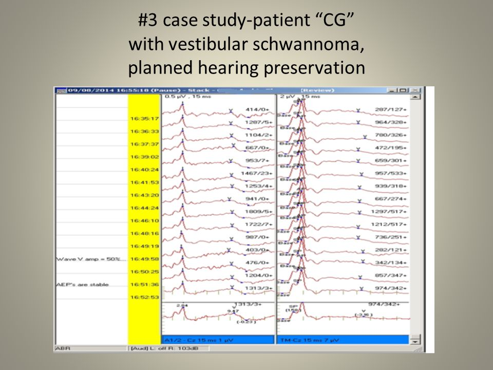 #3 case study-patient CG with vestibular schwannoma, planned hearing preservation