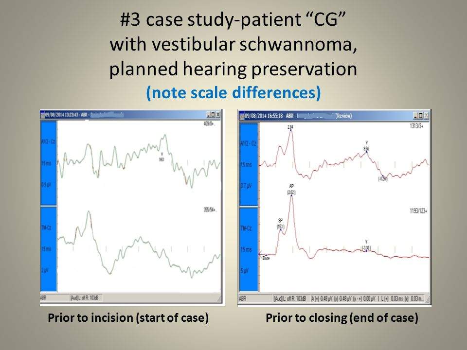 #3 case study-patient CG with vestibular schwannoma, planned hearing preservation (note scale differences)