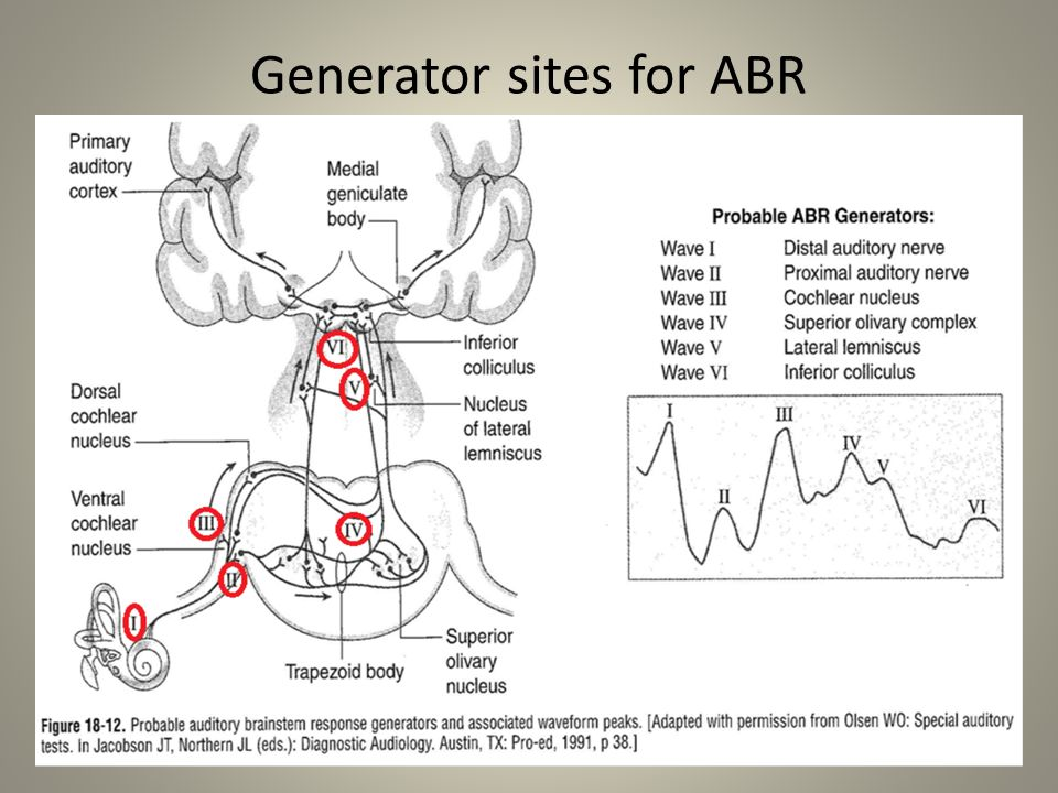 Generator sites for ABR