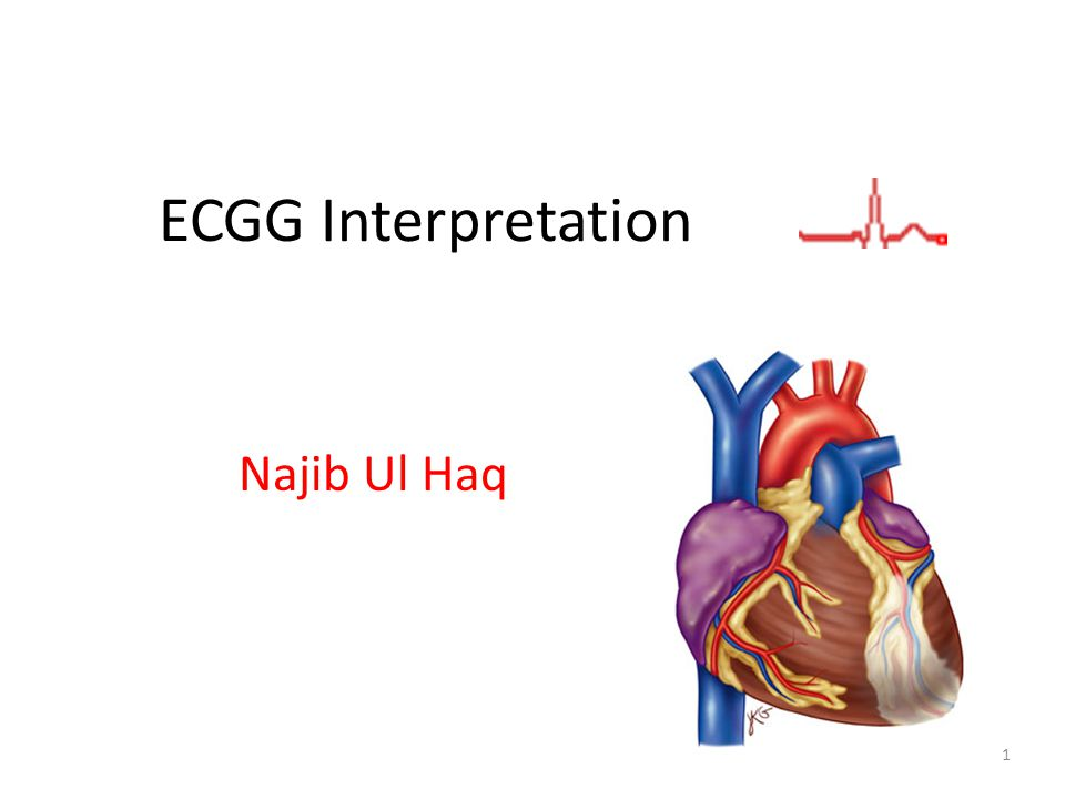 ECGG Interpretation Najib Ul Haq coyright 2004 Anna Story