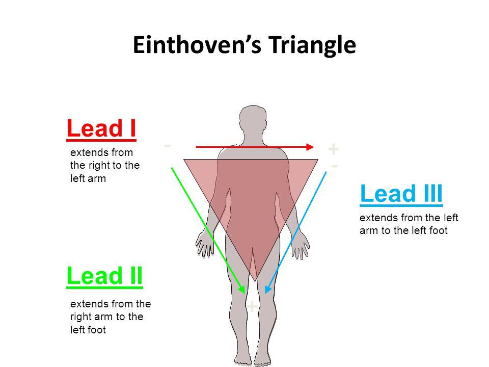 Einthoven's Triangle Lead I - + Lead III Lead II
