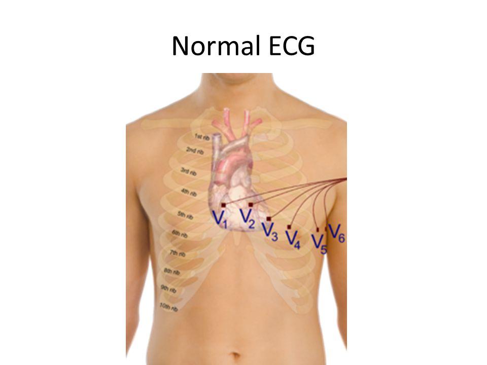 Normal ECG
