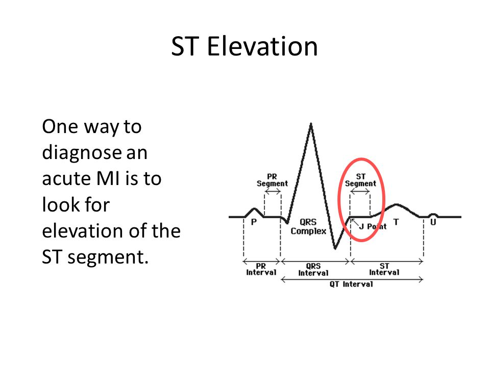 ST Elevation One way to diagnose an acute MI is to look for elevation of the ST segment.