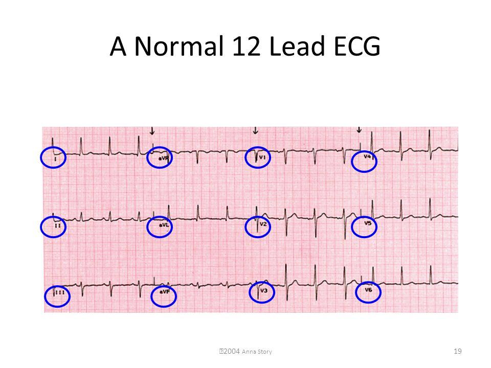 A Normal 12 Lead ECG 2004 Anna Story