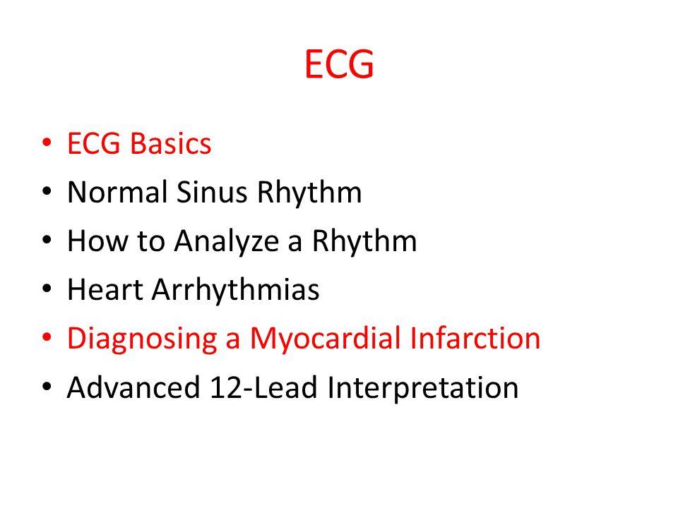 ECG ECG Basics Normal Sinus Rhythm How to Analyze a Rhythm