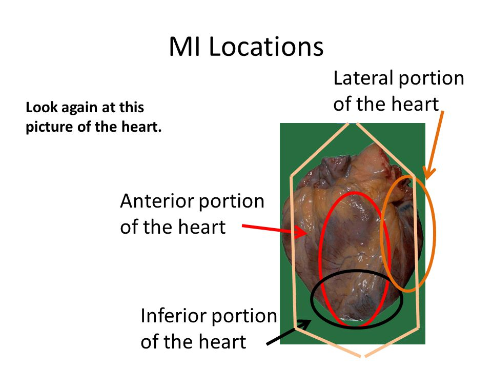 MI Locations Lateral portion of the heart