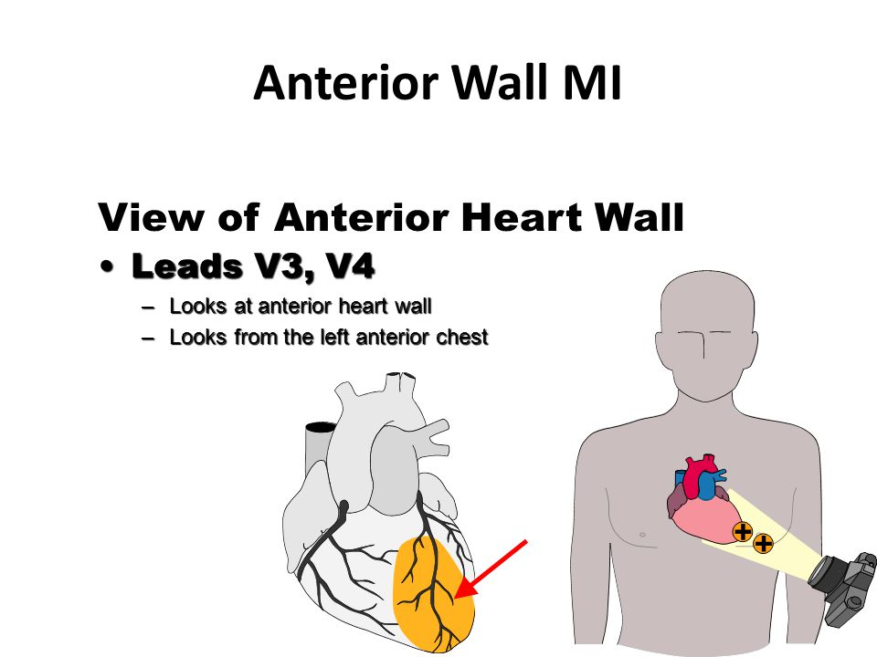 View of Anterior Heart Wall