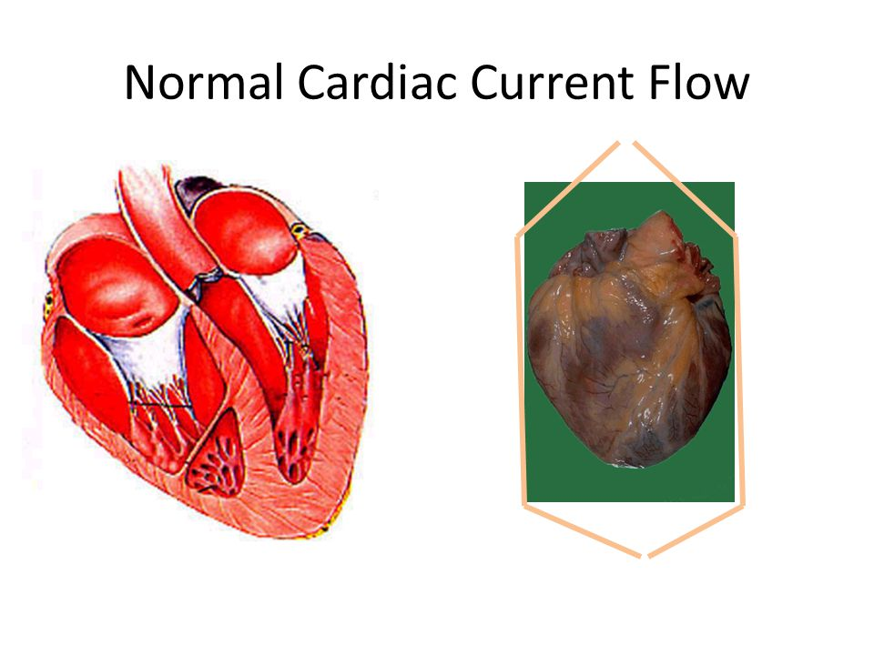 Normal Cardiac Current Flow