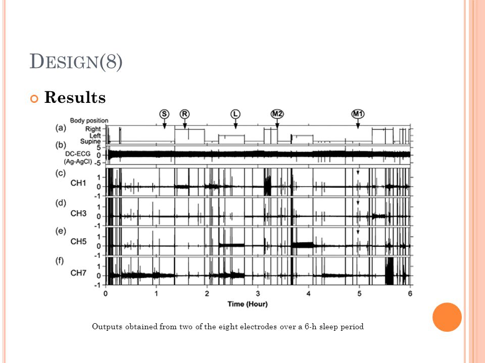 Design(8) Results Outputs obtained from two of the eight electrodes over a 6-h sleep period