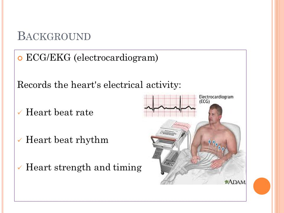 Background ECG/EKG (electrocardiogram)