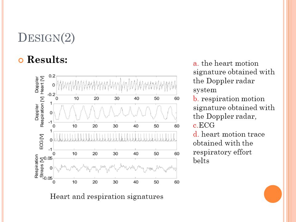 Design(2) Results: a. the heart motion signature obtained with the Doppler radar system.